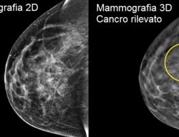 Mammografia Digitale con Tomosintesi 3D – Mammografia 3Dimensions