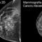 Mammografia, con lo screening 3D scoperto il 34% di tumori al seno in più